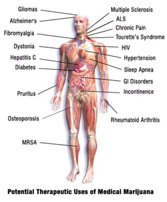 beneficios de la marihuana medicinal cuerpo