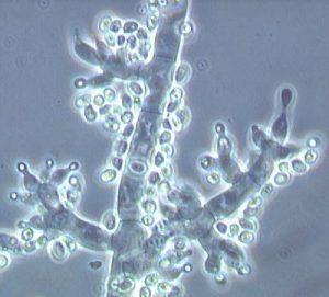 microorganismos en el cultivo de marihuana en maceta